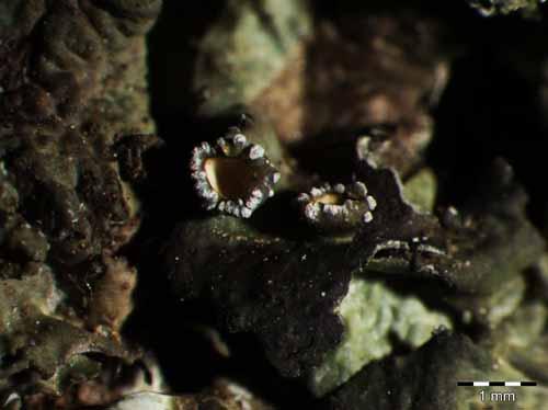 [Pleurosticta acetabulum]
