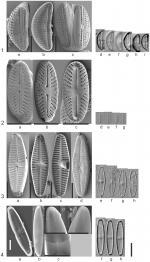 Fotos der vier neubeschriebenen Kieselalgen-Arten