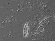 Eine Gewässerprobe der Lausitzer Neiße unter dem Lichtmikroskop: die Artenfülle von Kieselalgen wird deutlich. Ihre vielfältig gestalteten gläsernen Schalen aus Kieselsäure zeigen wichtige Bestimmungsmerkmale. © Forschungsgruppe Diatomeen, Botanischer Gar